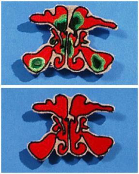 CF Sinus Overlay Set