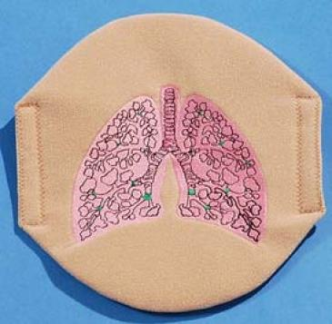 Cystic Fibrosis Affected Lung.