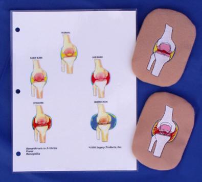 Hemophilia Knee Bleed Overlays