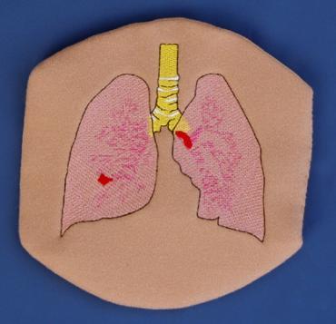 Hemophilia Lung Bleeds